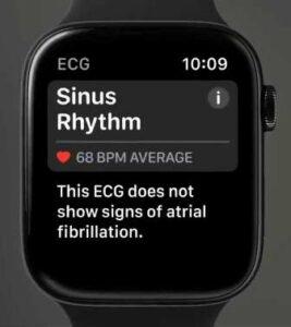Apple Watch Series 4 - normal heart rhythm